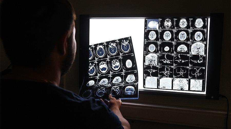 рентген снимки